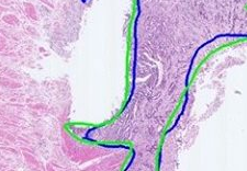 Digital pathology example